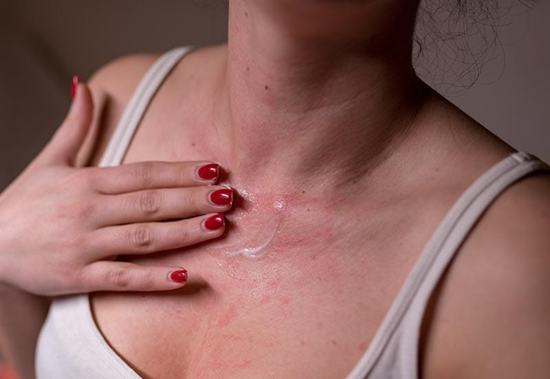 Woman with sensitive skin applying moisturiser on her chest